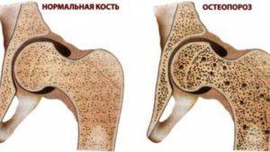 Возрастные изменения в суставах